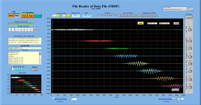 FRDFB-1.jpg